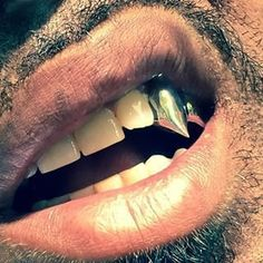 Dentaltown - Does your dental office provide Next Level Extreme Makeover Cosmetic Dentistry Services? Gold Fangs, Gold Teeth, Fang Grillz, Diamond Grillz, Dental, Extreme Makeover, Cosmetic Dentistry, Teeth Whitening, Swagg