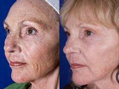 RODAN + FIELDS BEFORE AND AFTER