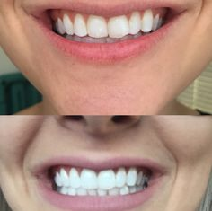 activated charcoal teeth whitener!