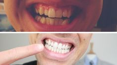 So you're looking to straighten your teeth? I share how I did it and give an honest review on Invisalign braces. Fix your teeth, improve your smile. #love #TagsForLikes #TagsForLikesApp #TFLers #tweegram #photooftheday #20likes #amazing #smile #follow4follow #like4like #look #instalike #igers #picoftheday #food #instadaily #instafollow #followme #girl #iphoneonly #instagood #bestoftheday #instacool #instago #all_shots #follow #webstagram #colorful #style #swag#fashion