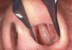 You want to know how to treat nasal polyps? Visit http://treatnasalpolyps.com/ the most informative and helpful nasal polyps related website