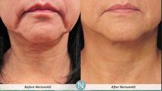 The Nerium 90 Day challenge! Beautiful!