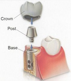 I have always wondered how dental implants were made. I though that it was all one piece. I had no idea just how many different pieces there really are though.  http://www.gastondentalassociates.com