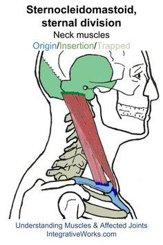 oit-sternocleidomastoid-sternal