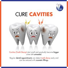 A #cavity, also called #ToothDecay, is a hole that forms in your #tooth. Cavities start small and gradually become bigger when they're left untreated. Because many cavities don't cause pain in the beginning, it can be hard to realize that a problem exists. Regular #dental appointments can detect tooth decay early and restored with cosmetic fillings. Dental Posters, Smile Design, Dental Art, Cavities, Pediatrics, Dentistry, Braces, Appointments