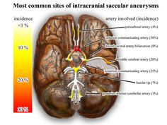 most common sites of intracranial saccular aneurysms. My rupture was in the Anterior Communicating Artery. I have 2 more unruptured annies they plan to monitor for growth. Circle Of Willis, Subarachnoid Hemorrhage, Brain Aneurysm, Carotid Artery, Im A Survivor, Icu Nursing, My Brain, Heat Map, Mary Sue