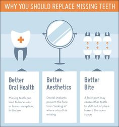 Why you should replace missing #teeth.