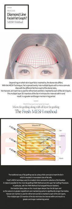 Facial Fat Graft | Korean Plastic Surgery | Fresh Plastic Surgery Barista Machine, Korean Plastic Surgery, Korean Facial, Beauty Hacks, Fat, Skin Care, Fresh, Beauty Tricks, Skincare Routine