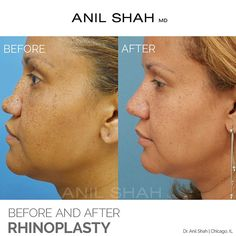 22 Best Female Rhinoplasty: Before & After images in 2019