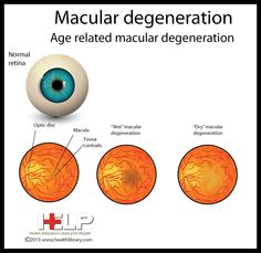 the symptoms and treatment of macular degeneration The diagnosis of macular degeneration is becoming increasingly common due to  patient awareness, physician access, groundbreaking improvements in.