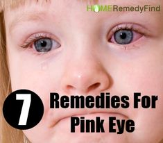 7 Amazing Home Remedies For Pink Eye  vheck lice add to handout