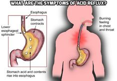 What Are The Symptoms of Acid Reflux? #AcidRefluxSymptoms ,  Since acid reflux, also called GERD (gastroesophageal reflux disease), can cause patients a great deal of discomfort and result in severe complications, it is highly important to know how to identify symptoms of acid reflux in order to quickly diagnose and treat it.