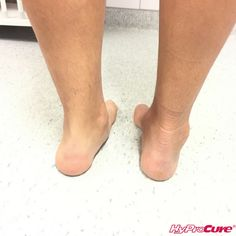 This patient has HyProCure in their right foot. Look at the difference!    We help people all around the world, it's so amazing!  #HyProCure #lifechanging