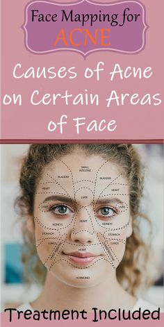 Face Mapping for Acne Face mapping shows the different areas of your face that relate to the different organs of your body. Acne face mapping has been used for thousands of years to diagnose the root cause of acne. SEE DETAILS. Cystic Acne Treatment, Natural Acne Treatment, Natural Skin Care, Face Treatments For Acne, Natural Beauty, Doterra Acne, Gesicht Mapping, Acne Breakout, The Face
