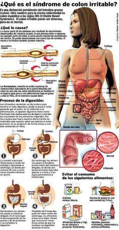 ¿Qué es el Síndrome de Intestino Irritable o Colon Irritable?