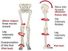 flat feet에 대한 이미지 검색결과