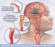 There are two main causes of stroke. The first is ischaemic (accounting for over 80% of all cases) – the blood supply is stopped due to a blood clot.