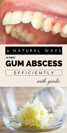 4 Natural Ways To Treat Gum Abscess Efficiently With Garlic