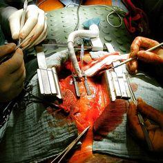 Revascularização do Miocárdio Sem Circulação Extracorpórea (CEC)! #DoutorLima #CirurgiaCardiovascular