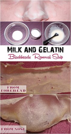 Home Made Milk and Gelatin Strip to Remove Blackheads | Beauty Tutorials