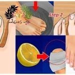 How to Remove Ingrown Nails Without Surgery   The ingrown nails occur when the edge of the toenail is buried within the skin of the toe. Pain, redness, and swelling may be present around the toenail. An ingrown..  The post  How to Remove Ingrown Nails Without Surgery  appeared first on  Diva lives .  #Health #Food  #News  #health  #nails