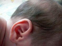 Bebeklerde Kulak Ağrısı Tedavisi | Tedavisi ve Yöntemleri