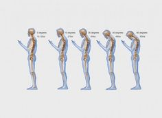 'Text neck' is becoming an 'epidemic' and could wreck your spine - The Washington Post