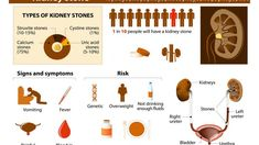There are many home remedies for kidney stones, which people are unaware of. In this article, we've listed some easy and effective kidney stone remedies. Location Of Kidneys, Signs Of Kidney Stones, Home Remedy Teeth Whitening, Uric Acid, Carbonated Drinks, Kidney Health, How To Grow Taller, Kidney Disease, Natural Home Remedies