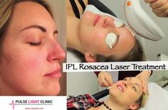 Pulse Light Clinic IPL Laser Rosacea Treatment