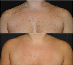 With photorejuvenation laser treatments, you can erase sun damage from any part of the body.