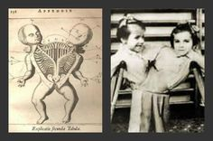 4 Of The Most Evil Science Experiments Ever Performed http://all-that-is-interesting.com/evil-science-experiments?utm_source=Facebook&utm_medium=social&utm_campaign=rpages2_7458&utm_term=d44cf1a4ca7aa4156d938b2ac71a7e3ae30cbee13f5395114110dc677786dd26
