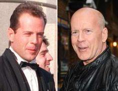 Διασημοι ηθοποιοι του '80 - Bruce Willis (1987, 2015) - Nick Ut/AP Photo; Ray Tamarra/Getty Images