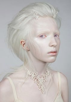 16 year old Nastya Kumarova, an albino model from Russia. Compliment her on her Facebook page