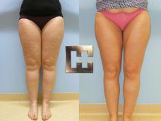 VASER-Fettabsaugung des gesamten Beins Hollywood, Liposuction, Wels, Legs