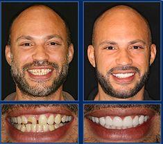Crooked teeth i want white teeth,professional teeth whitening dentist dental care coverage,dental dentist dental hygiene clinic. Dental Hygiene, Dental Health, Dental Care, Affordable Dental Implants, Tooth Crown, Crooked Teeth, Dental Veneers, Porcelain Veneers, Smile Makeover