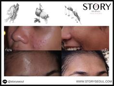 We are happy to see before and after results from using Story Seoul Skincare: healthy, smoother and more radiant skin without putting one's health at risk.    All our products are free from toxic ingredients with no Parabens, no Ethanol, no Mineral Oil, no Phenoxyethanol, no Benzophenone, no Talc, no Animal Raw, no Triethanolamine, no Petrolatum, no Synthetic Pigments, no SLS, no SLES, no Lanolin.    We look forward to seeing more before and after results.