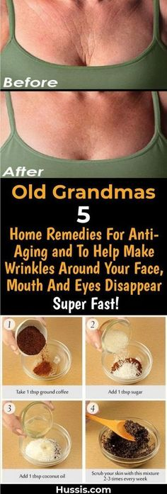 Old Grandmas 5 Home Remedies For Anti-Aging and To Help Make Wrinkles Around Your Face, Mouth And Eyes Disappear Super Fast! Old Grandmas 5 Home Remedies For Anti-Aging and To Help Make Wrinkles Around Your Face, Mouth And Eyes Disappear Super Fast! Beauty Secrets, Beauty Hacks, Diy Beauty, Beauty Care, Homemade Beauty, Home Beauty Tips, Star Beauty, Beauty Skin, Health And Beauty