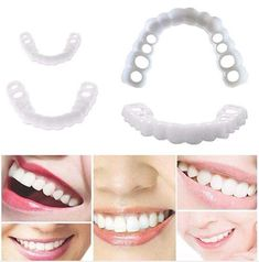 Perfect Teeth, Perfect Smile, Snap On Smile, Veneers Teeth, Teeth Braces, Dental Teeth, Smile Teeth, Stained Teeth, Cosmetic Dentistry