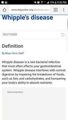 clinica di dieta mayo gallstoness