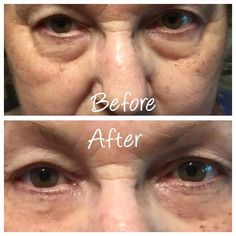 Instantly Ageless is a breakthrough product and WOW, I am loving it and making great money as I change lives two minutes at a time! Watch my 2 minute video: www.doyouknowsomeonewithaface.com