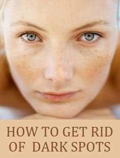 Natural Tips On How To Get Rid Of Brown Sun Spots