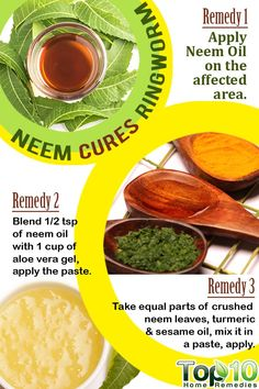 Neem (Indian lilac) Home Remedy to Get Rid of Ringworm Ayurvedic Home Remedies, Top 10 Home Remedies, Home Health Remedies, Holistic Remedies, Natural Home Remedies, Natural Healing, Herbal Remedies, Natural Medicine, Herbal Medicine