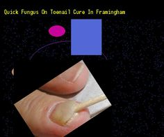 Quick fungus on toenail cure in framingham - Nail Fungus Remedy. You have nothing to lose! Visit Site Now
