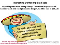 History of dental implants - Wondered since when dental implants have been in use? The Mayans would dig tooth-like shells into the jaw to replace missing teeth. And this was in 600 AD.
