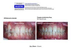 Casi clinici ortodontici Affollamento dentale http://www.studiodentisticobalestro.com/2014/11/affollamento-dentale.html