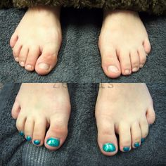 LCN WILDE-PEDIQUE before and after  | Kynsistudio Zenails