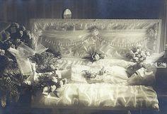 Girl in open casket