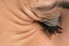 Odstráňte vranie nohy z vonkajšieho rohu vášho oka pomocou týchto 6 jednoduchých tipov   MegaZdravie.sk