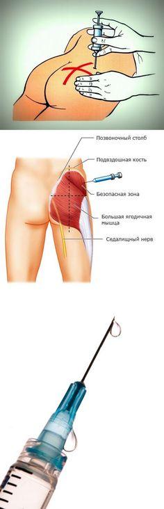 La inyección intramuscular en el glúteo: aprender a hacer usted mismo - consejos de Acciones