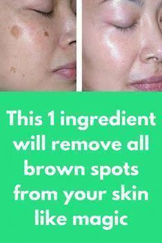 The way to Remove Brown Spots on Facial area #RemoveBrownSpotsOnFace #NaturalWayToGetRidOfBrownSpotsOnFace